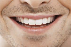 Cape Coral Dentist
